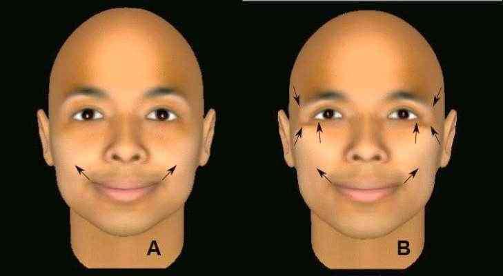 Diferença entre sorriso verdadeiro e falso