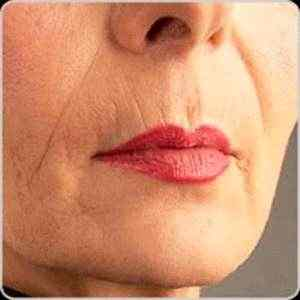rugas-lip-lines